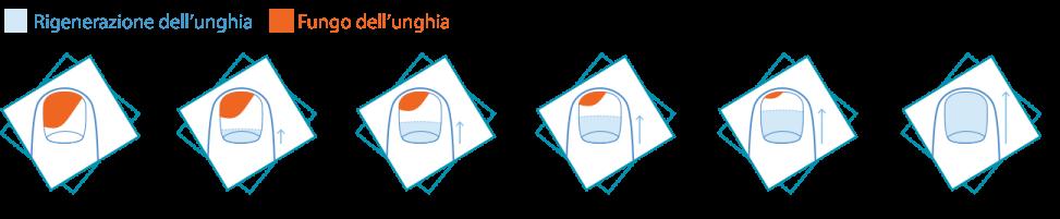 Quale lamizit meglio o ekzoderit per trattamento di un fungo di unghie